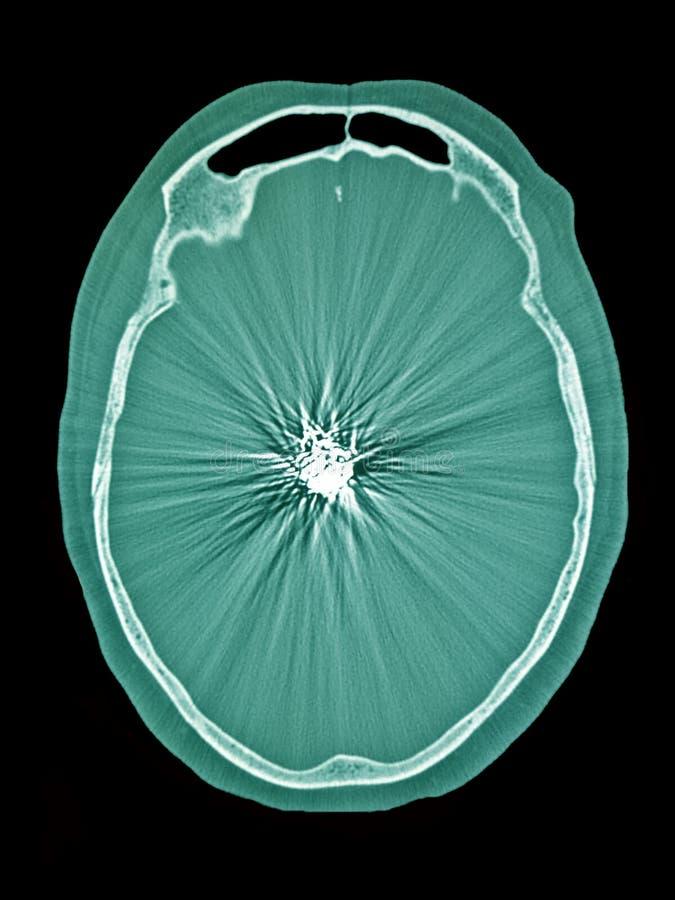 盘绕的大脑动脉瘤, CT图象 免版税库存图片