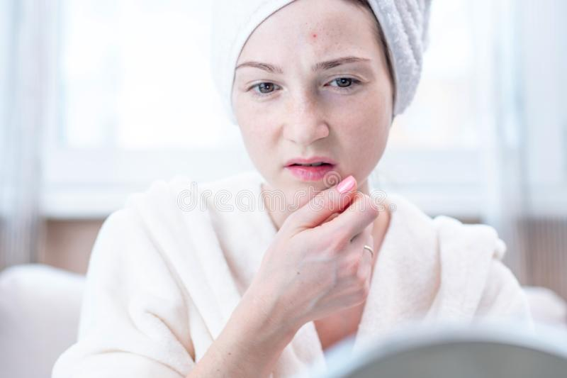 看在她的面孔的美丽的不快乐的年轻女人粉刺 卫生学和喜欢的概念皮肤 库存照片