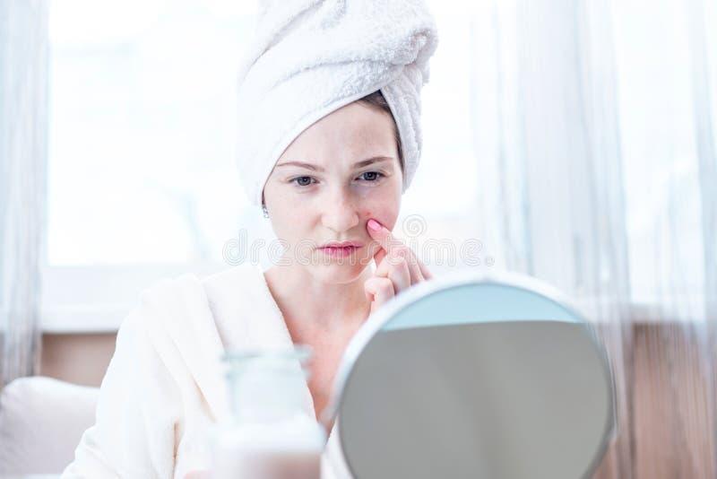 看在她的面孔的美丽的不快乐的年轻女人粉刺 卫生学和喜欢的概念皮肤 库存图片
