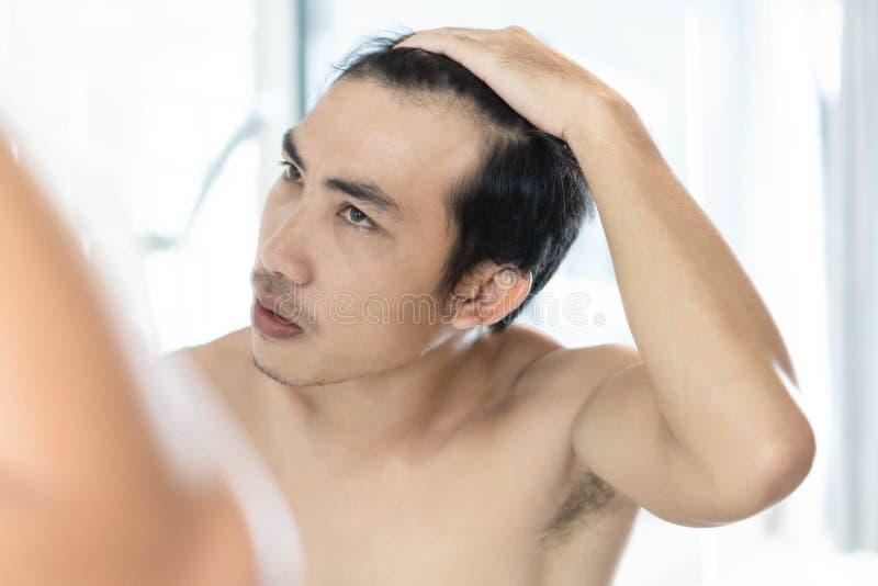 看在镜子严肃的掉头发问题的人的关闭反射为医疗保健香波和美容品概念 免版税库存图片