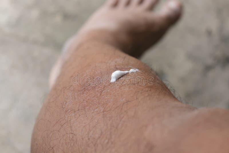 真菌导致皮肤损害 库存照片