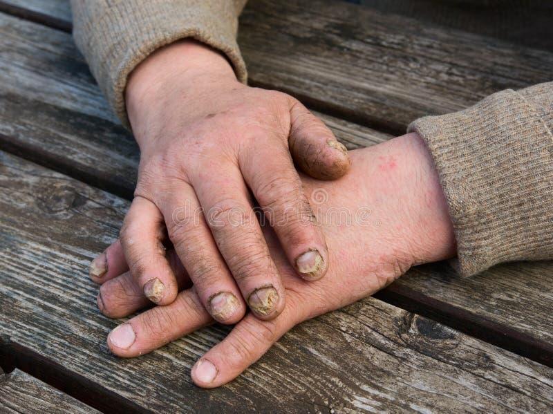真菌感染钉子 库存照片
