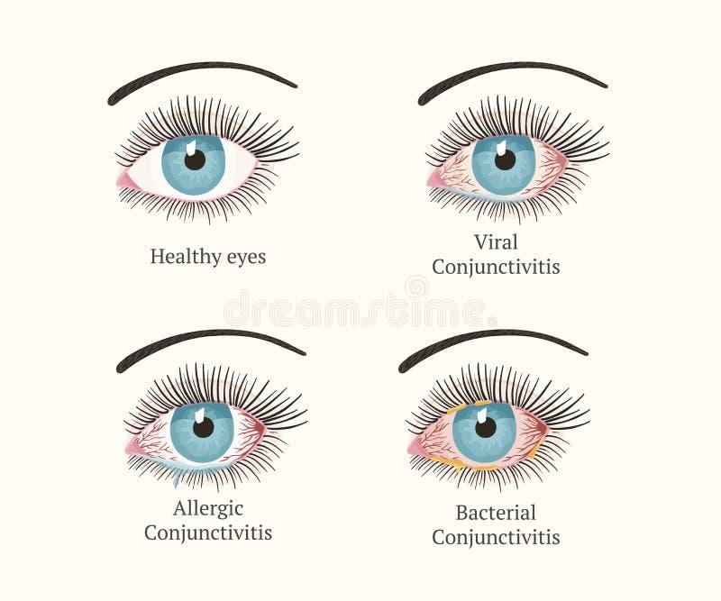眼病 眼科学健康例证 库存例证