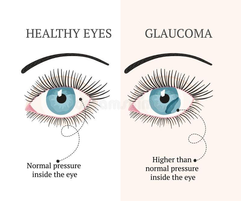 眼病 眼科学健康例证 向量例证