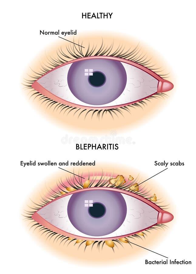 眼睑炎 向量例证
