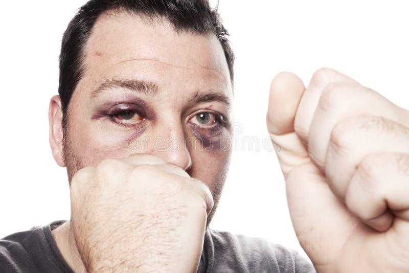 黑眼睛伤被隔绝的拳击手暴力 库存照片