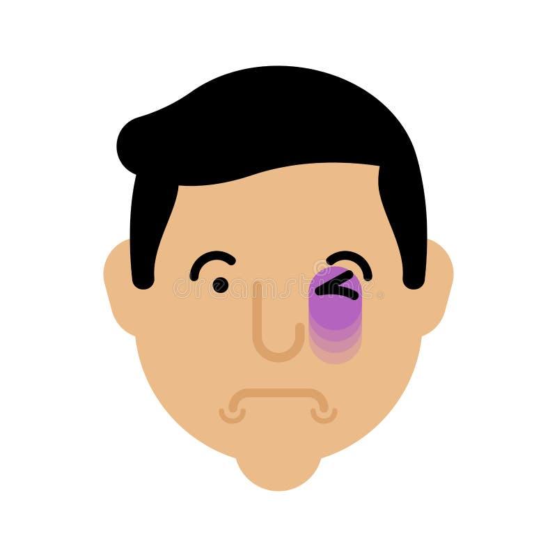 眼睛挫伤面孔 挫伤头 黑眼圈画象 皇族释放例证