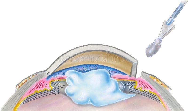 眼睛-大瀑布手术第5步 皇族释放例证