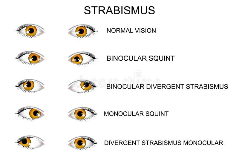 眼睛 斜视的类型 向量例证