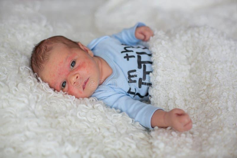 睡觉小新出生的婴孩,婴孩以皮疹 库存图片