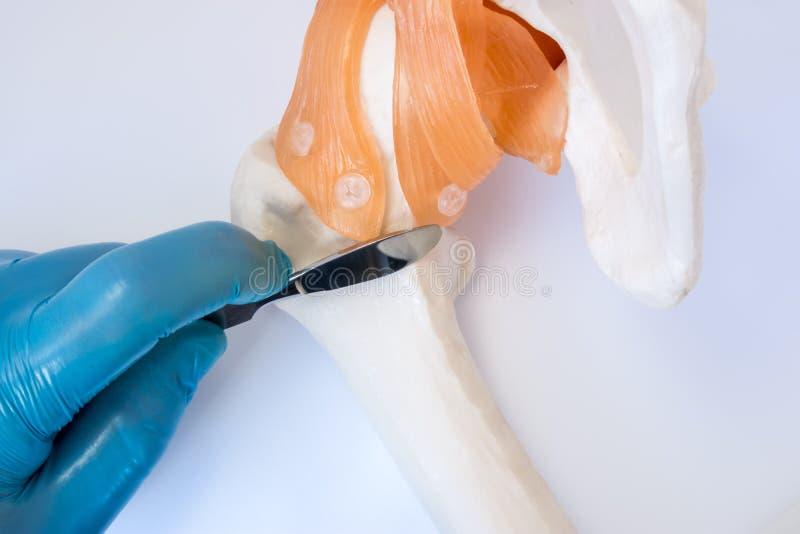 矫形或创伤手术概念照片 外科医生在手套拿着外科解剖刀手中,穿戴,在股骨骨头在熟悉内情的joi附近 免版税库存图片