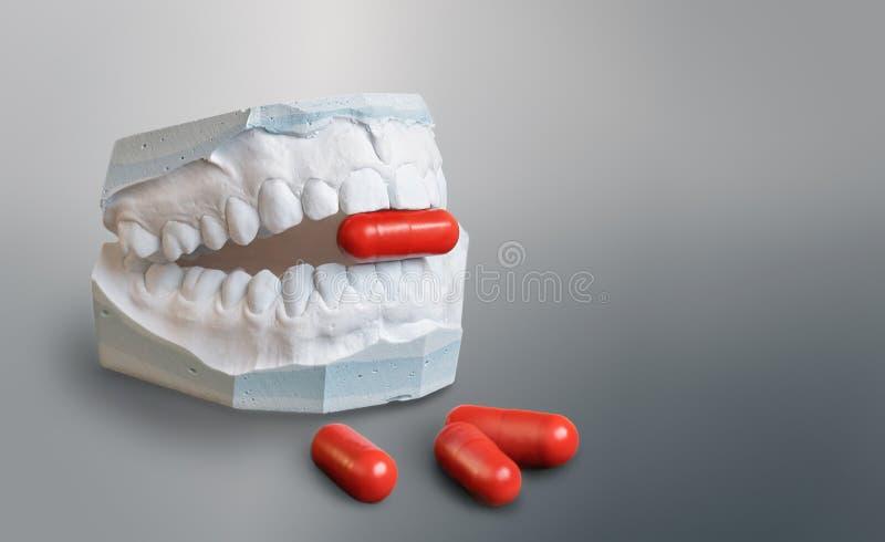 石膏牙式样藏品一个红色医学胶囊 图库摄影