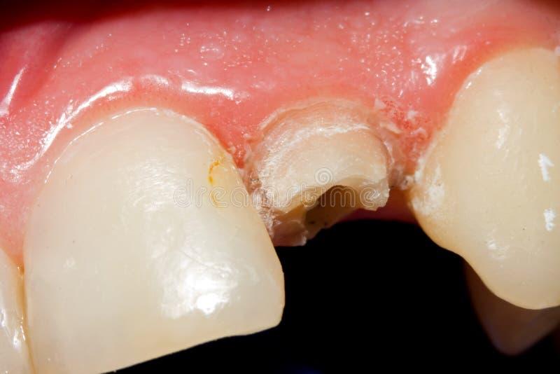 破裂的牙 库存图片