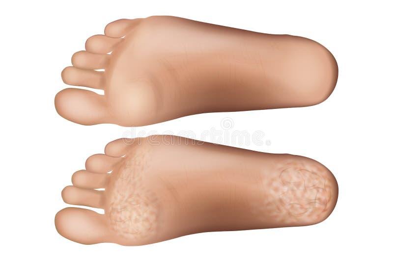 破裂的脚跟 与干燥的脚 皇族释放例证