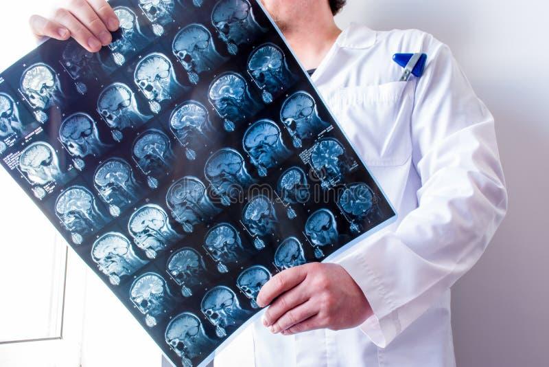 神经学家或神经外科医师挺直藏品MRI脑子扫描观察和探索它中央神经系统病理学的  免版税库存图片