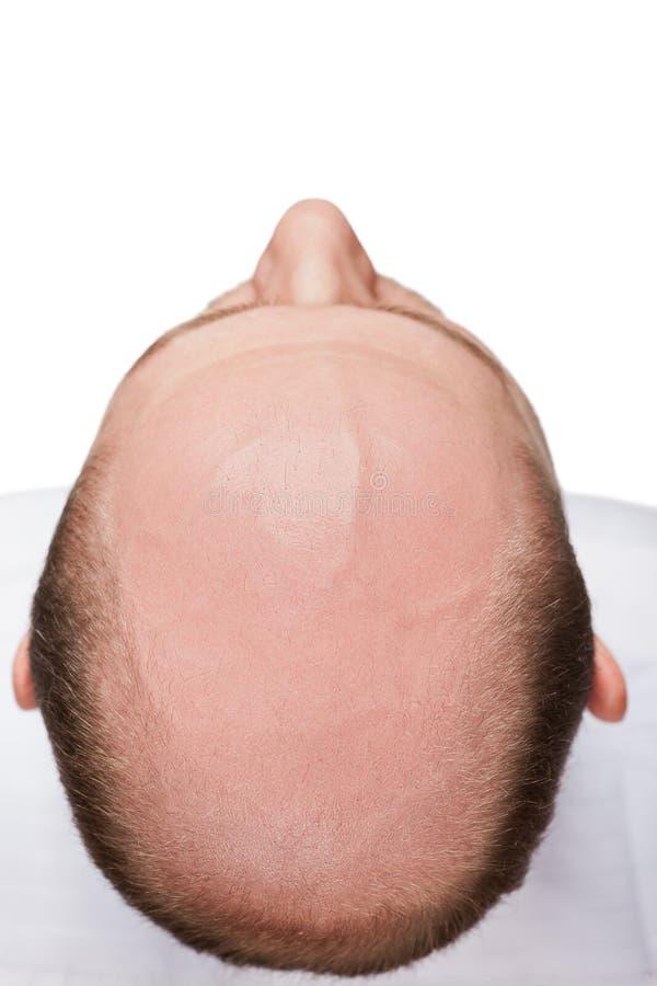秃头人题头 免版税库存图片