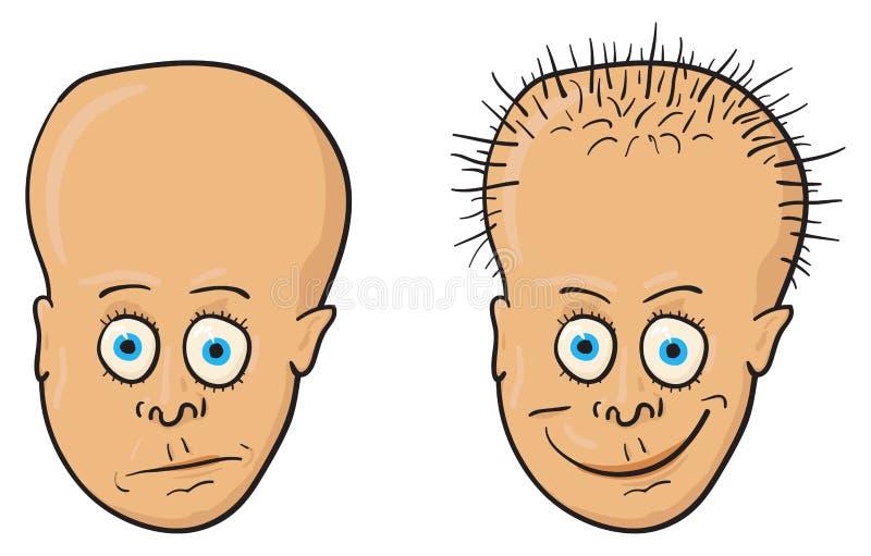 秃头头发题头例证患者 向量例证