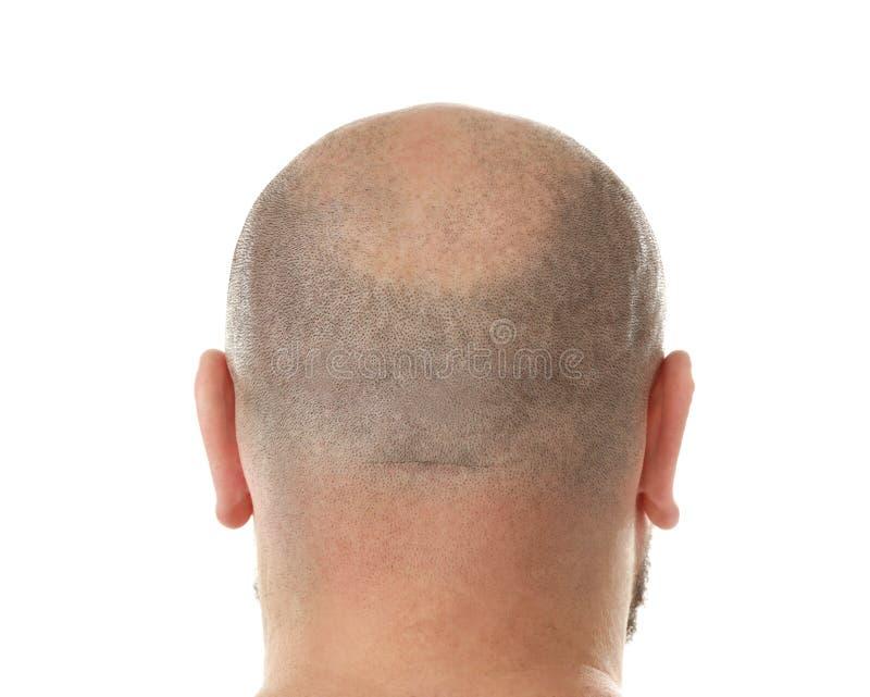 秃头成人人 免版税库存照片