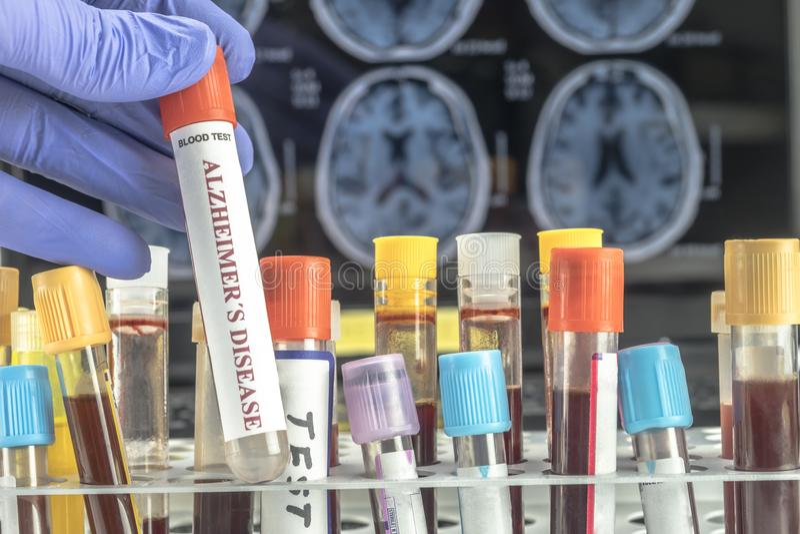 科学家拿着血样调查补救反对老年痴呆症 免版税库存图片