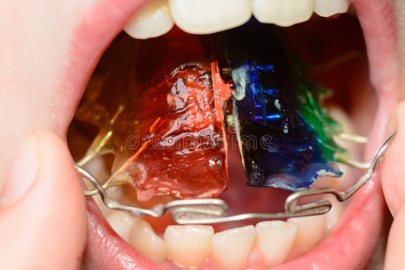 穿戴一金属片的一个大计划牙发怒的 库存图片