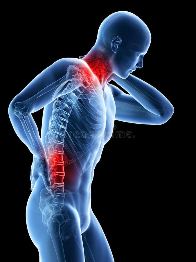 突出和脖子 向量例证