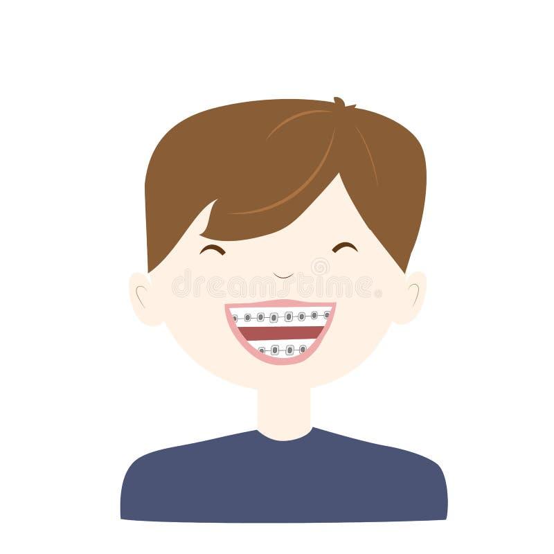 笑的男孩佩带的括号牙系统 r 库存例证