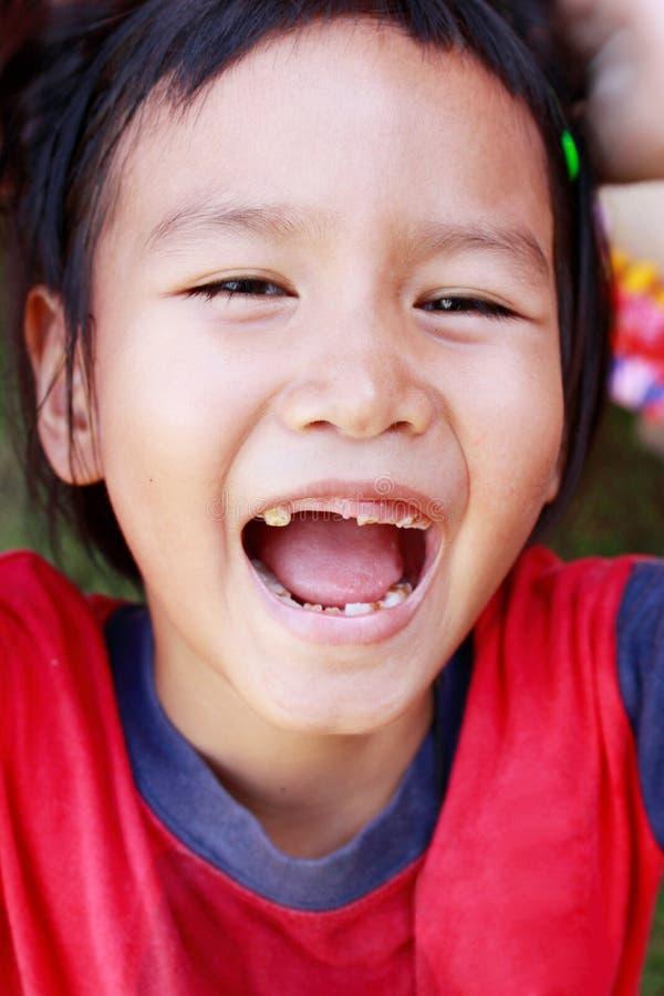 笑被伤的牙的孩子 免版税图库摄影