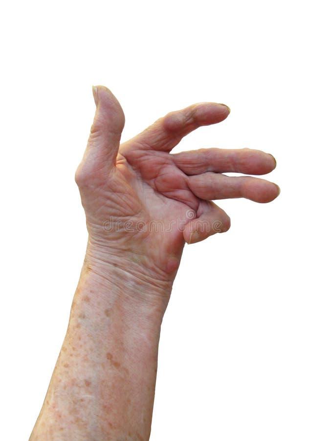 类风湿病的关节炎 免版税库存照片