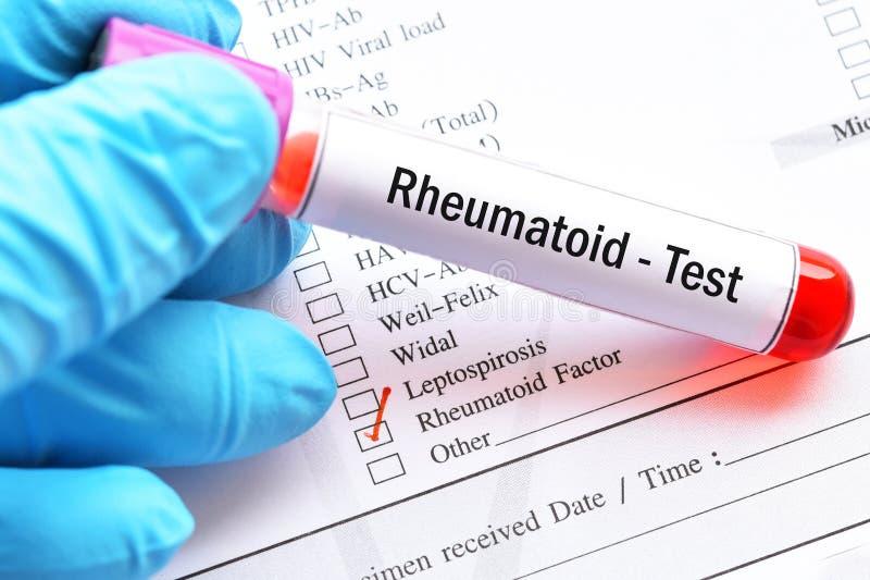 类风湿病的因素测试的血样管 免版税图库摄影
