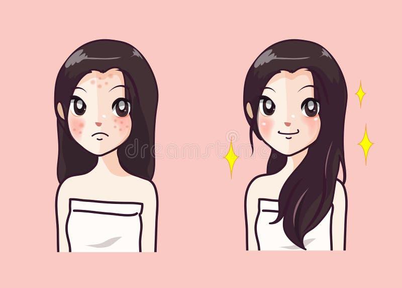 粉刺女孩和美丽的清楚的皮肤女孩,在以后前 库存例证