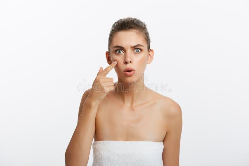 粉刺斑点丘疹斑点skincare秀丽按在皮肤问题面孔的关心女孩 有被隔绝的皮肤伤疤的妇女,白色 免版税库存照片