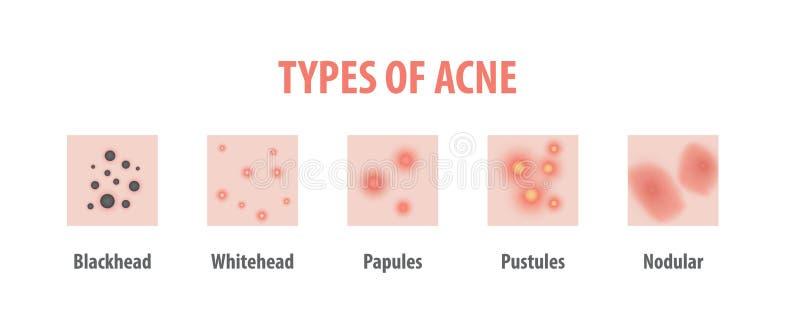 粉刺的类型用图解法表示在白色背景, B的例证传染媒介 皇族释放例证