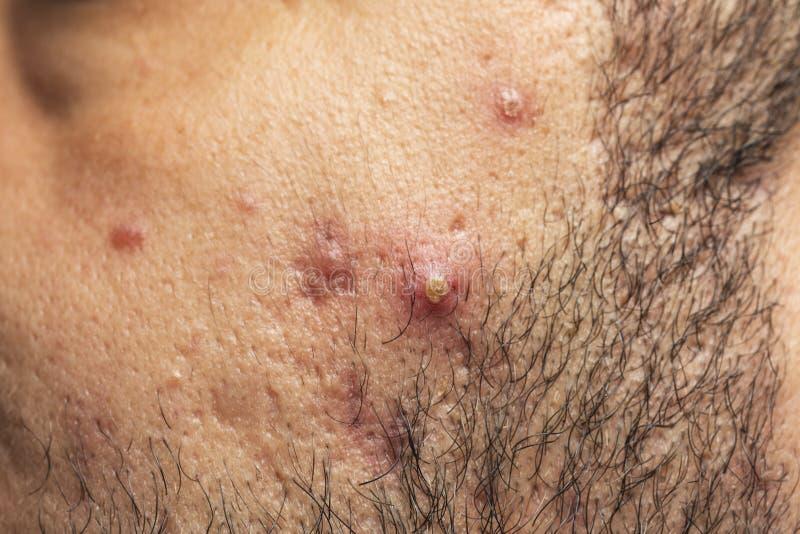 粉刺,在面孔、皱痕和粉刺炎症的粉刺特写镜头在皮肤的在面孔皮肤 免版税库存照片