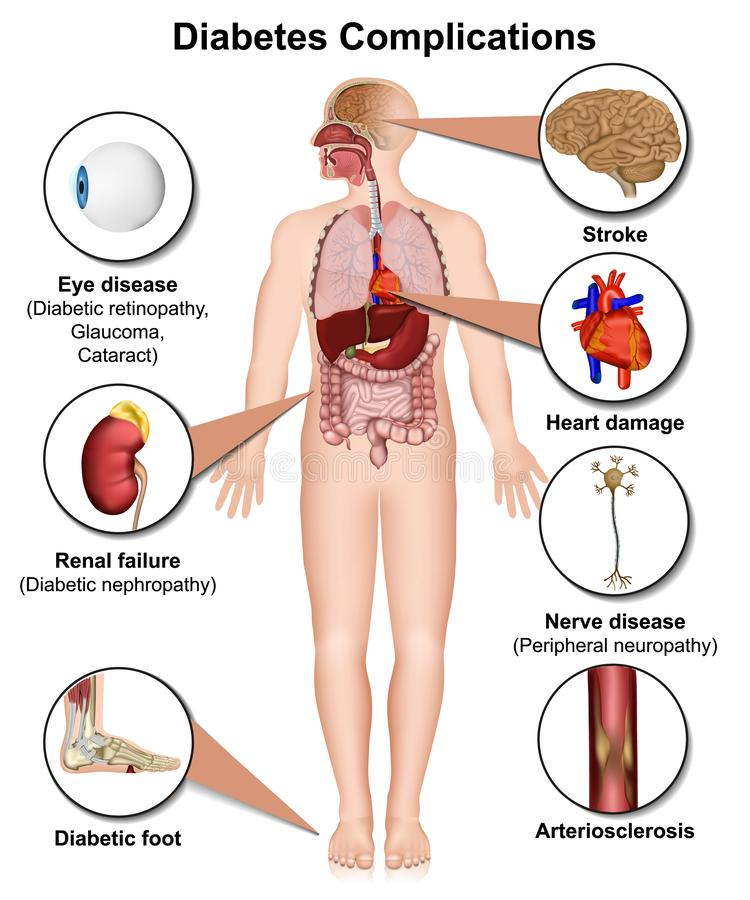 糖尿病复杂化和疾病医疗3d例证在白色背景 皇族释放例证