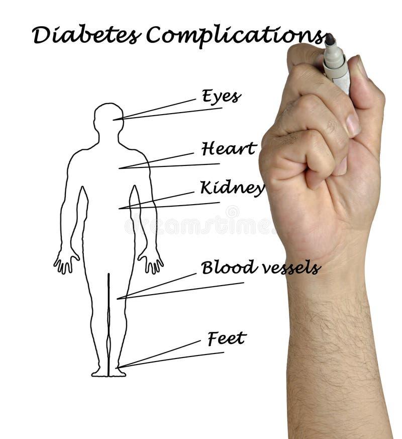 糖尿病复杂化 库存照片