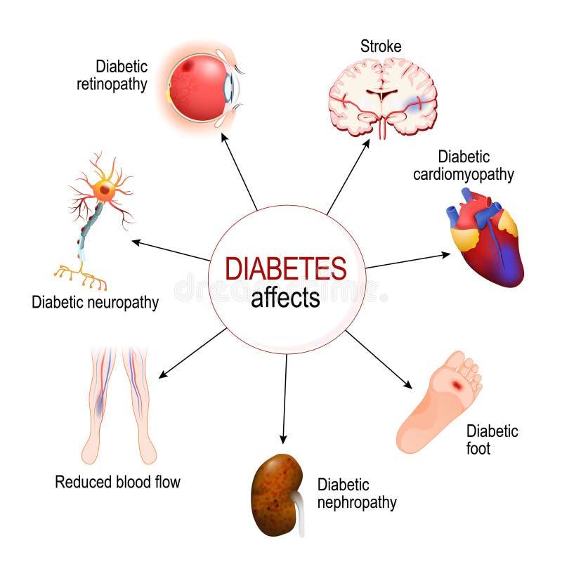糖尿病影响 糖尿病的复杂化 库存例证