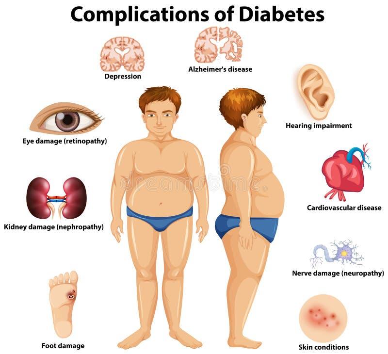 糖尿病概念的复杂化 向量例证
