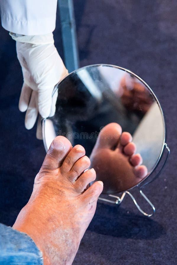 糖尿病脚 免版税库存图片