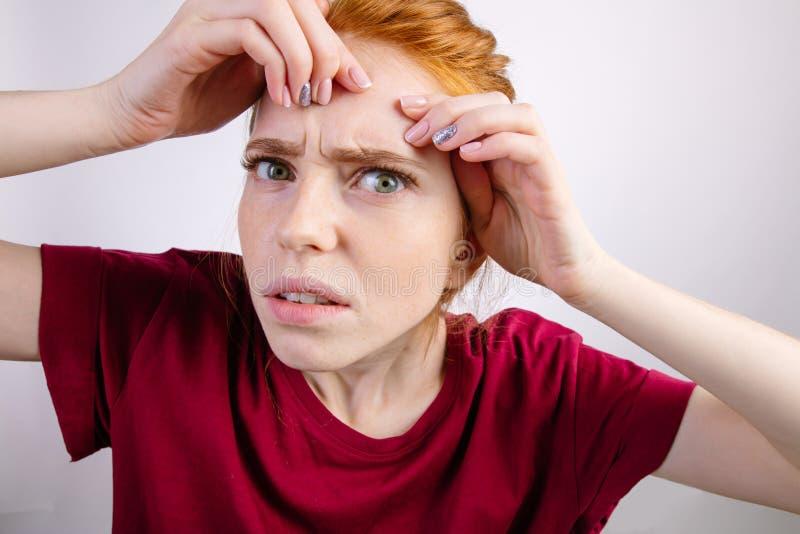 紧压她的丘疹的红头发人妇女,去除丘疹从她的面孔 库存照片
