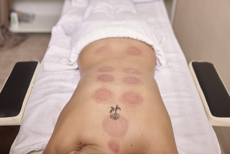 红色真空斑点,干燥托起的疗法,在妇女,户内,无法认出的人 免版税库存图片