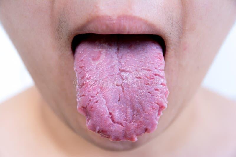 细菌感染疾病舌头,舌头是鹅口疮 舌头创伤 裂纹舌 库存图片