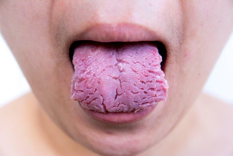 细菌感染疾病舌头,舌头是鹅口疮 舌头创伤 裂纹舌 免版税库存照片