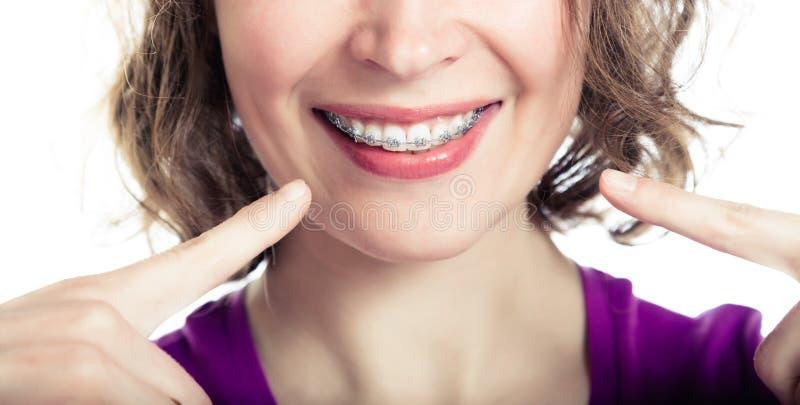 美丽的微笑的女孩佩带的括号 免版税库存图片