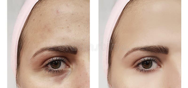 美好的女孩粉刺,在眼睛撤除疗法下的挫伤在做法前后 库存图片