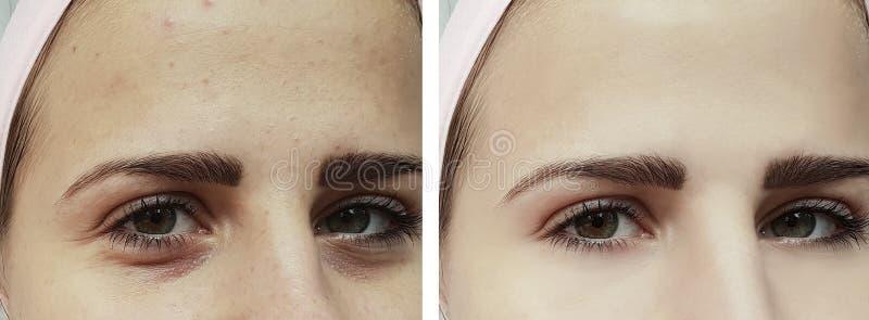 美好的女孩粉刺,在眼睛疗法下的挫伤在做法前后 库存照片