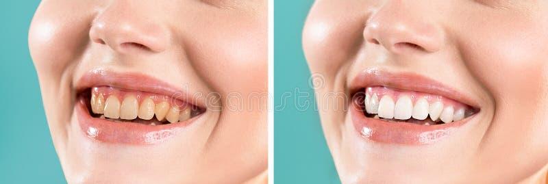 美白前后牙齿微笑 免版税库存图片