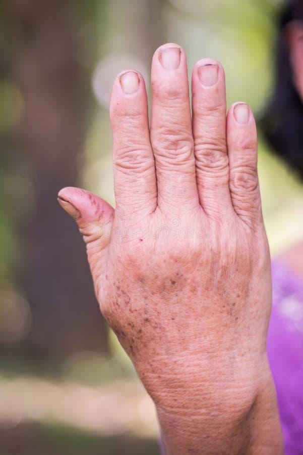 老亚裔妇女的后面手 库存图片