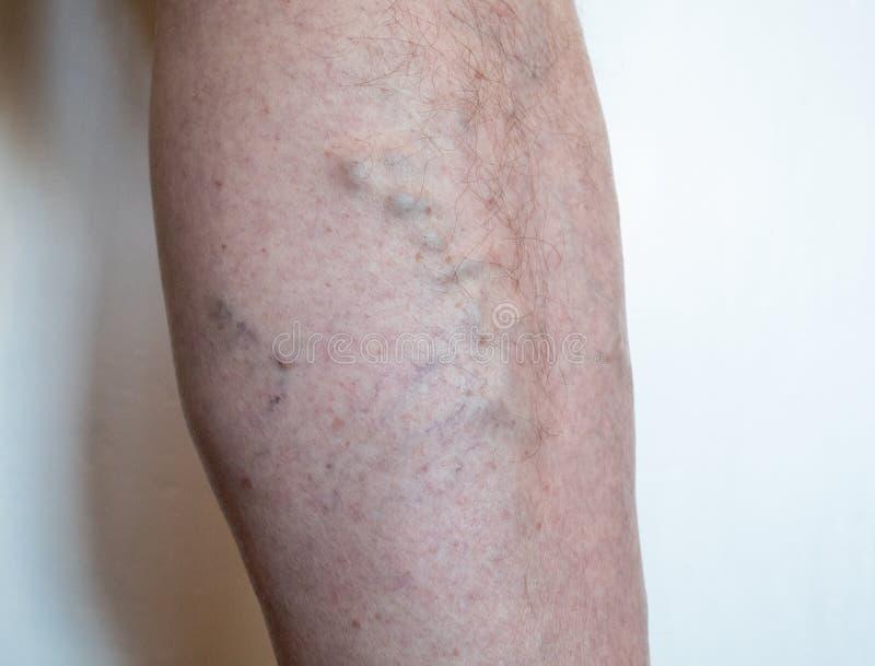 老人的腿有-扩大,圆鼓和扭转静脉的静脉曲张的,当在错误的方向的血流 免版税库存图片