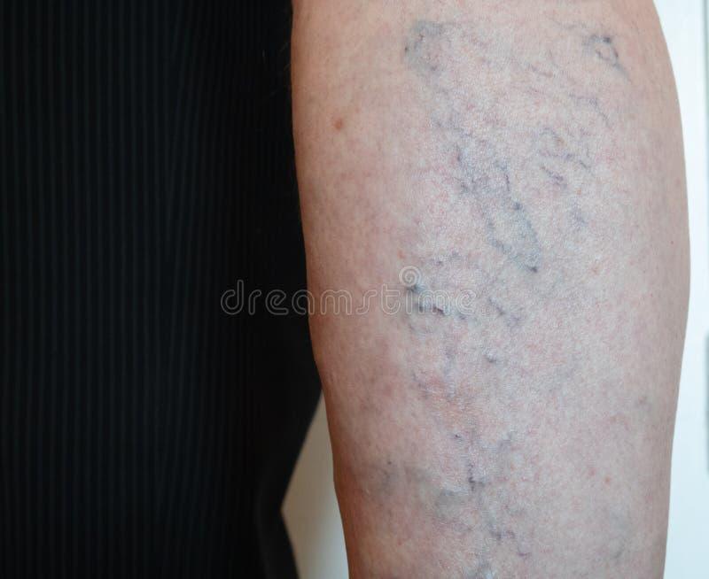 老人的腿特写镜头有导致静脉曲张的血丝滤网的 库存照片