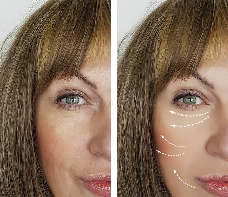 老妇人在结果举在再生结果医学做法以后的美容师治疗前起皱纹,面部 免版税库存图片